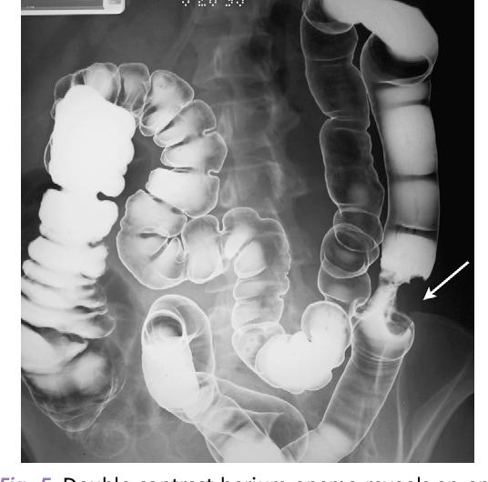 cancer colorectal barium enema