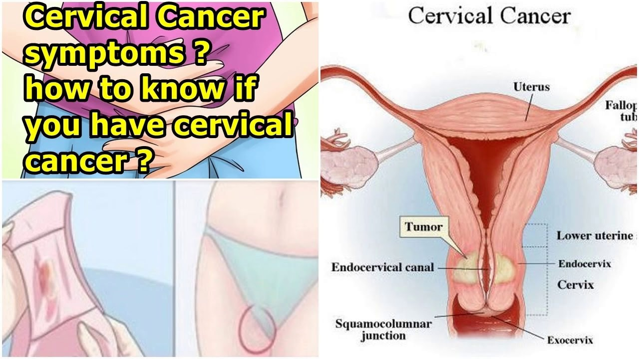 endometrial cancer early signs
