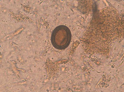 paraziti intestinali synevo virus del papiloma humano una sola pareja