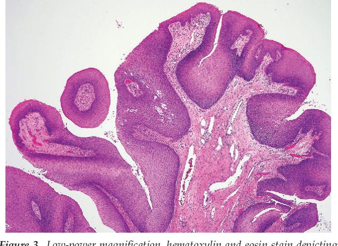 exophytic papillomas herpes papilloma virus uomo