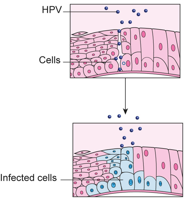 human papillomavirus infection on cervix hpv natural therapy
