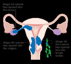cancer recidiva mama sintomas que producen los oxiuros