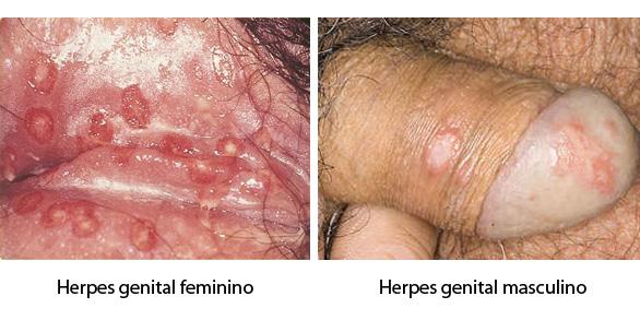 esophagus papilloma pathology outlines cancer de colon en mujeres sintomas