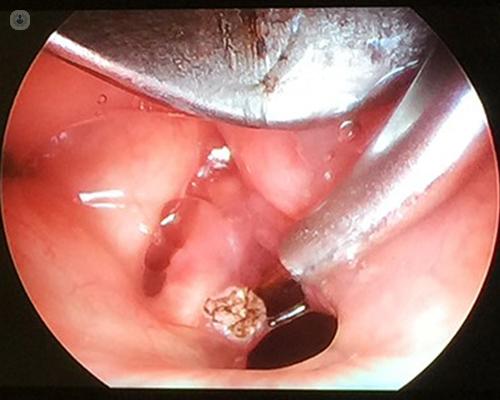 papillomatosis bronchitis