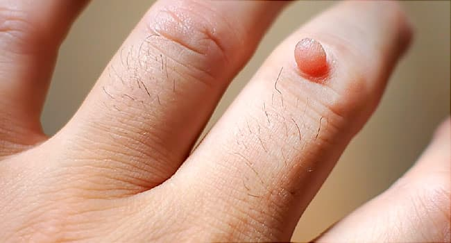 warts on hands for years