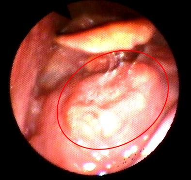papilloma sul naso hpv throat cancer symptoms causes