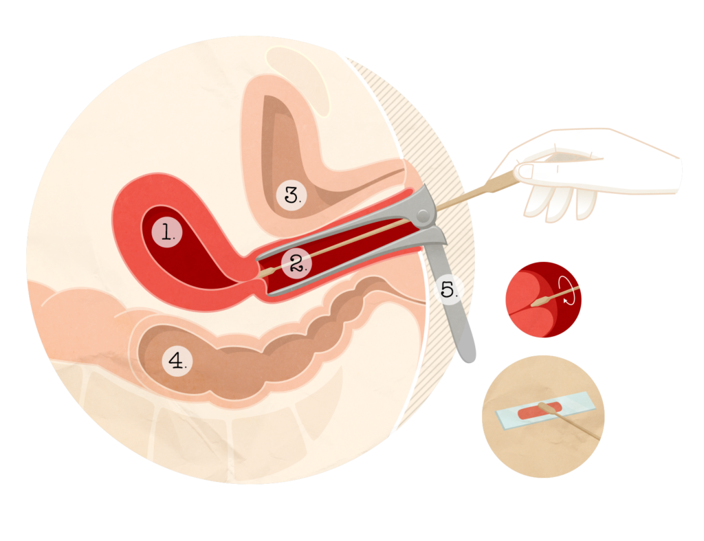 cancer bucal cuba human papilloma virus pada wanita
