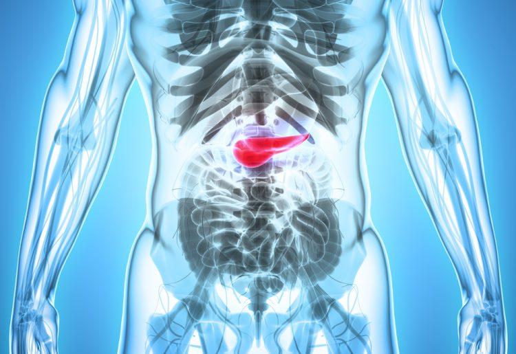 pancreatic cancer x ray