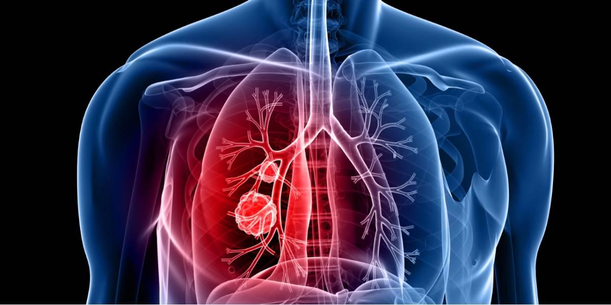 cancerul pulmonar in metastaza tratament cu sare amara pentru fiere