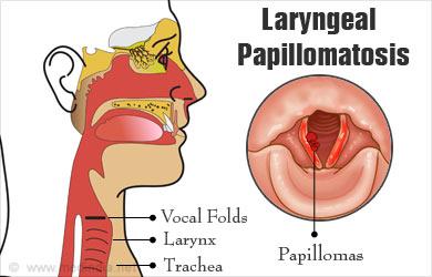 laryngeal papillomatosis pharynx recidive papilloma vescicale