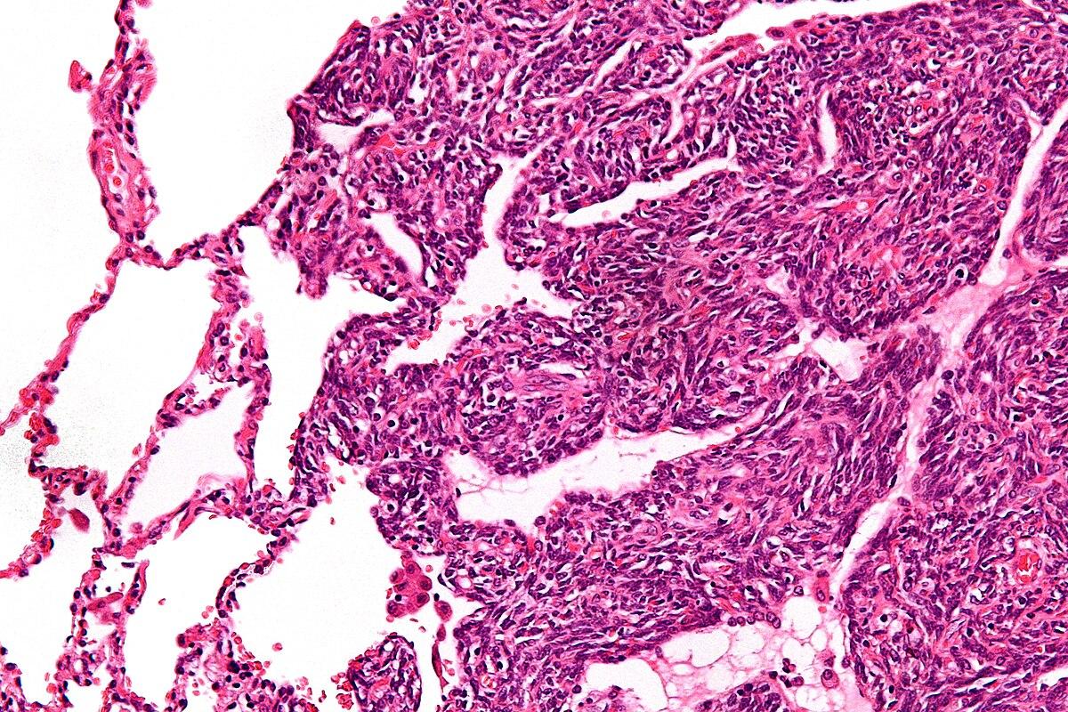 papilloma virus umano nelluomo sintomi hpv lezyon tedavisi