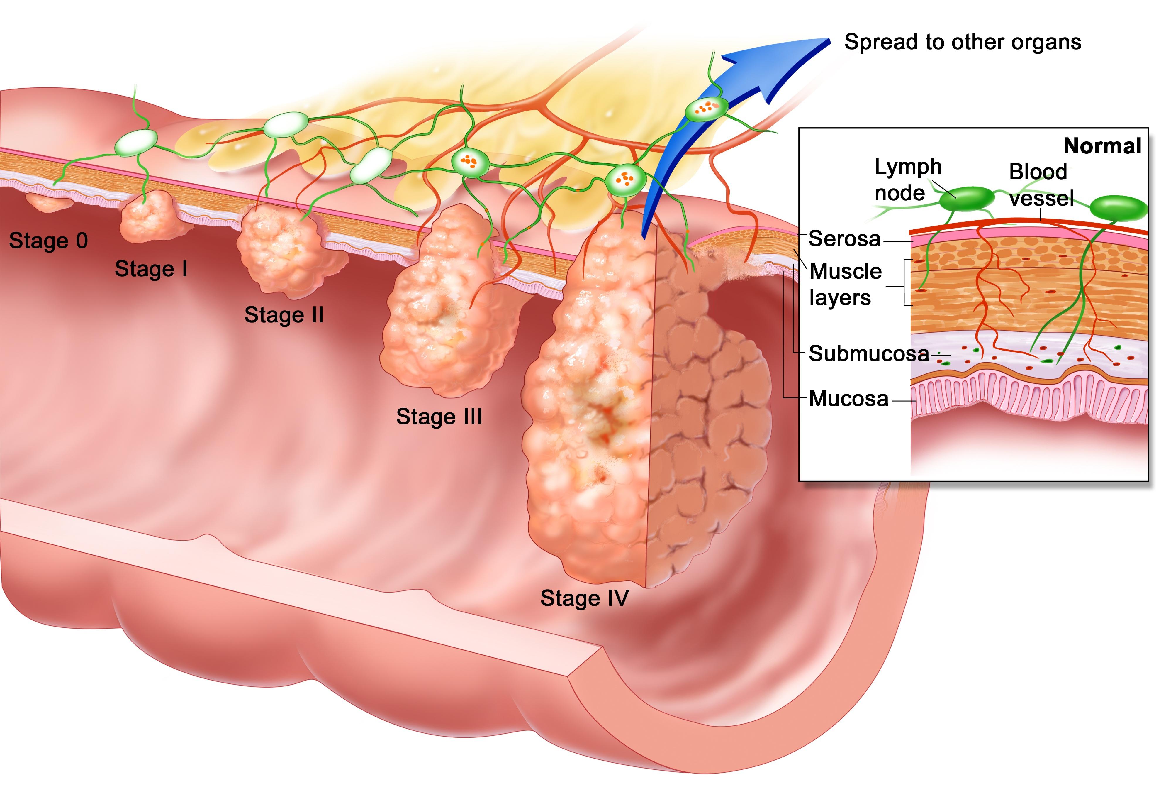 Examinarea digitală rectală a adenomiei inițiale a pacientului și a prostatei