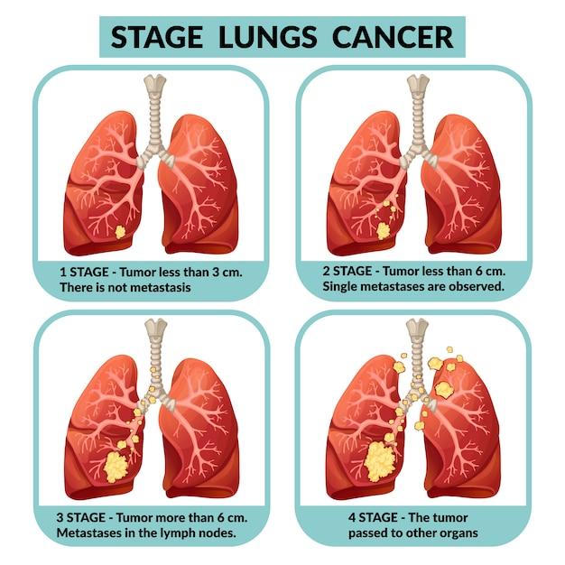 hpv cancer colon virus papiloma humano sintomas cura