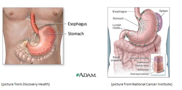 cancerul gastric-intestinal