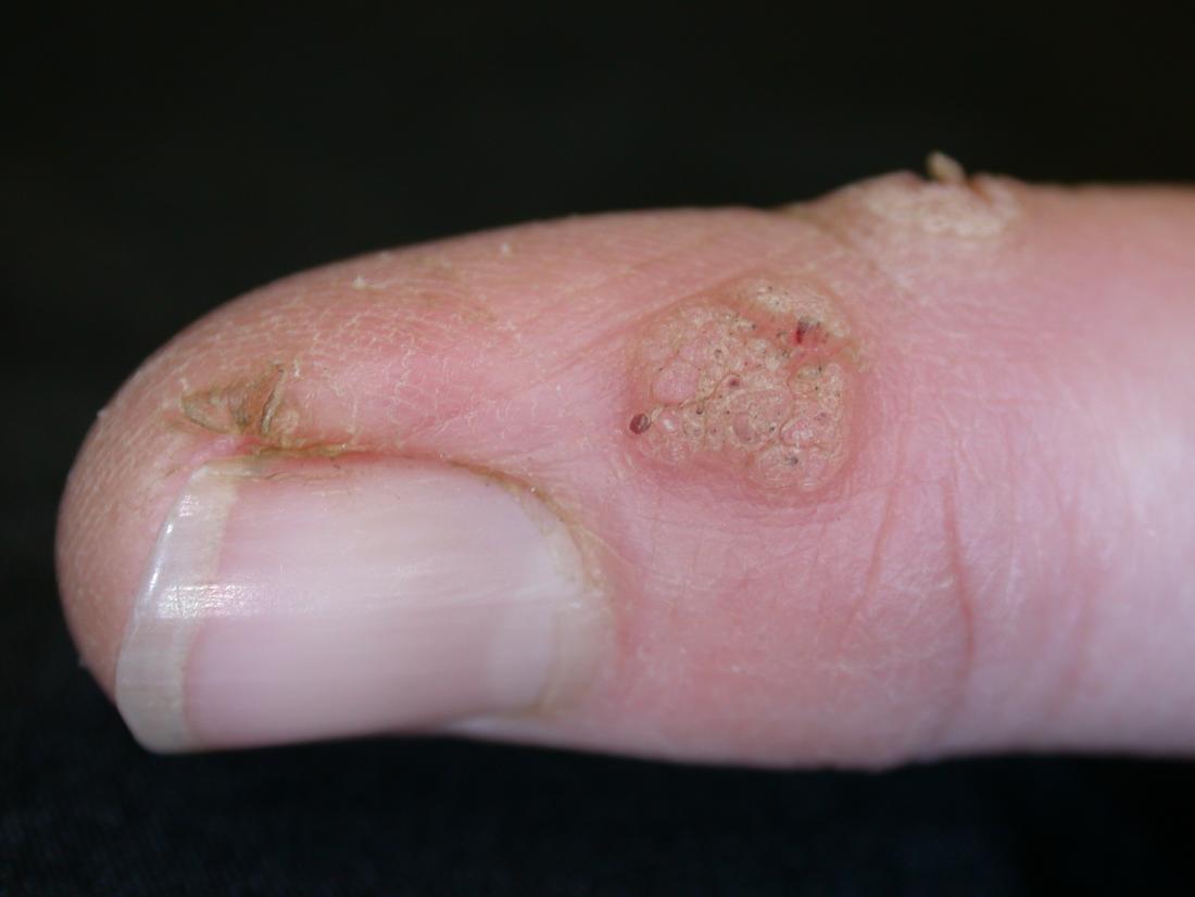 warts on black hands
