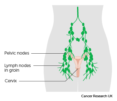 cancer cervical metastasis el virus hpv papiloma