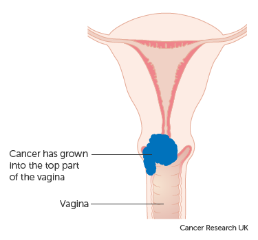 cervical cancer research squamous papilloma with mild dysplasia