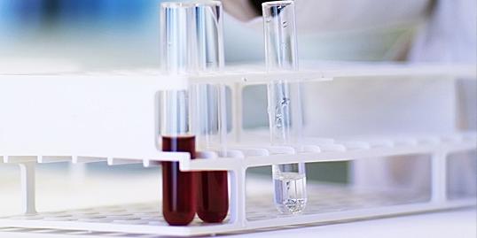 test hiv anonimo mestre pentru oxiuri copii