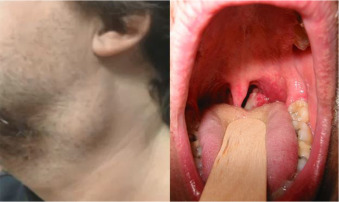 intraductal papilloma in breast hpv na lingua qual medico procurar