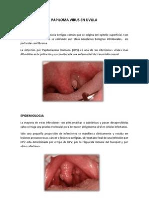 paraziti intestinali guppy papilloma uvula sintomas
