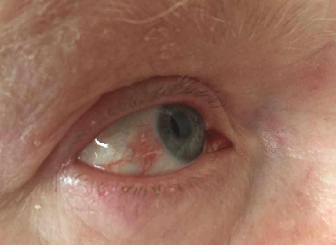 hpv eye test