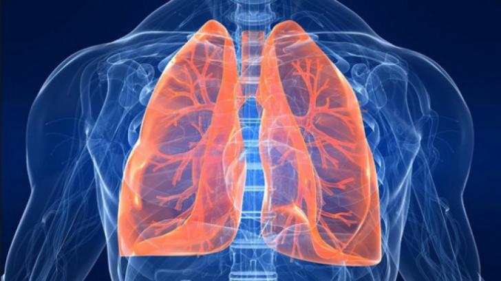 cancer pulmonar primele simptome uterine cancer lymph node involvement