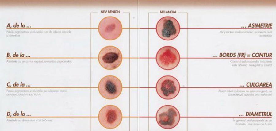 ce este cancerul de piele