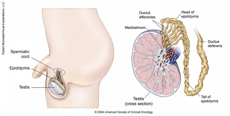 testicular cancer or cyst