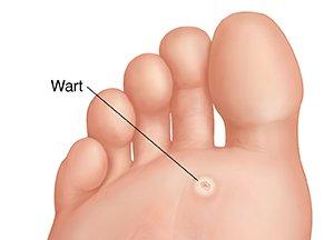 wart under foot hurts