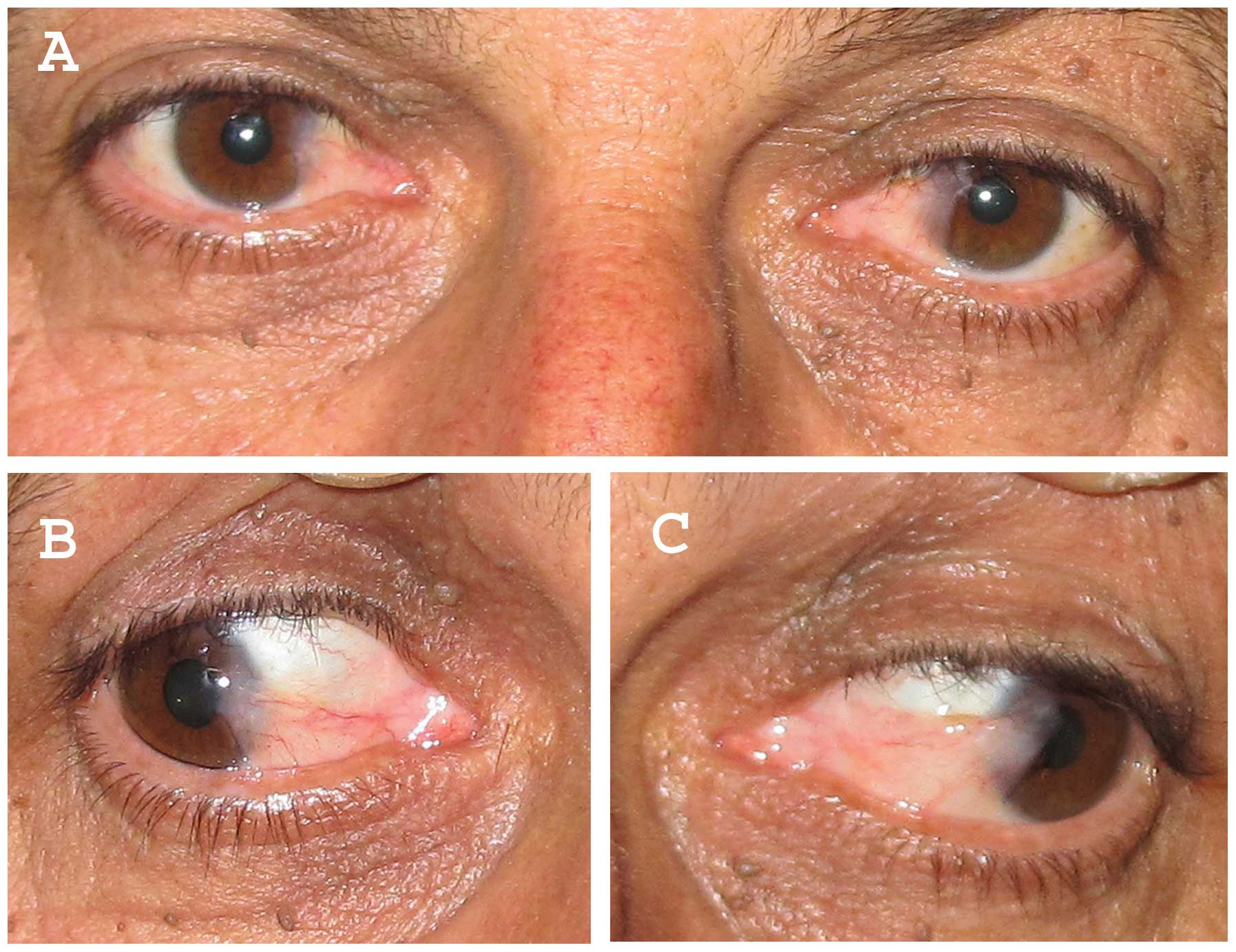 eyelid papilloma hpv caracteristicas del papiloma virus