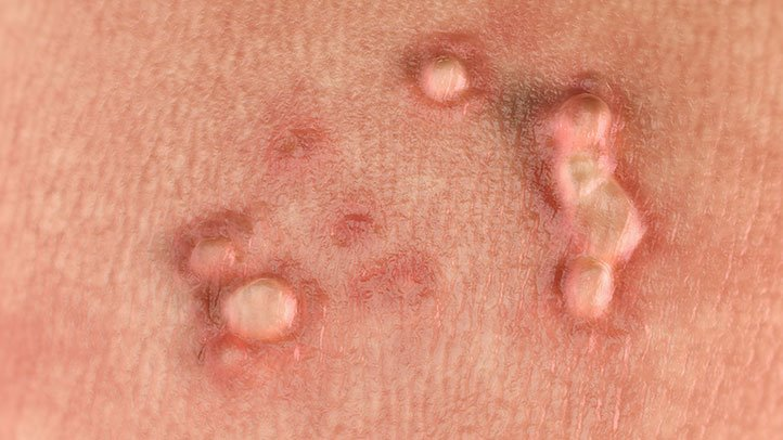 hpv in women diarrhea for 4 days