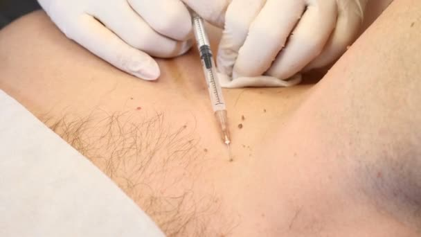 removal of papilloma intestinal cancer curable