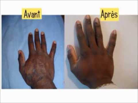 hpv sintomi bruciore viermi giardia tratament