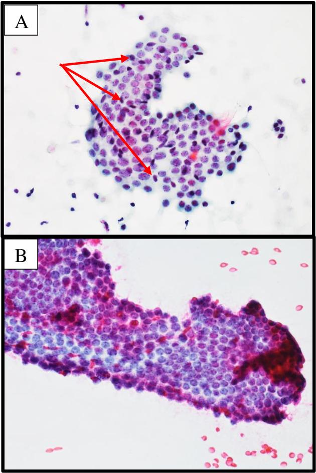 duct papilloma cytology