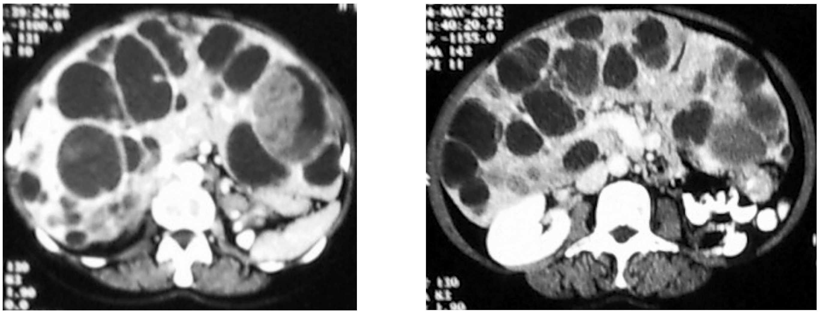 cervical cancer brown discharge