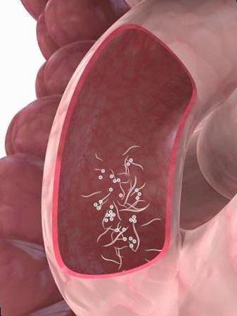 tratamiento farmacologico de oxiuros en ninos papillomavirus humain homme