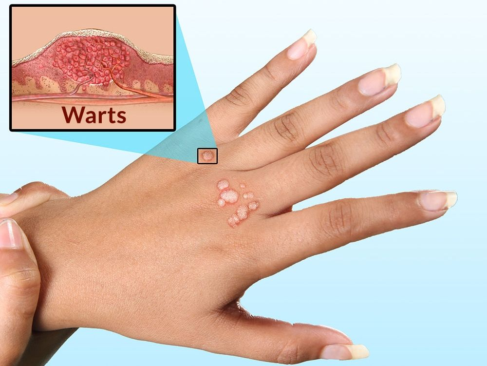 warts on hands what causes it hpv relacionado cancer colo utero