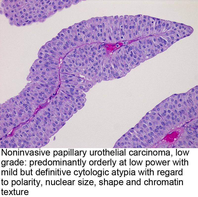 cancer renal diagnostico diferencial vaccino papilloma virus ogni quanto tempo