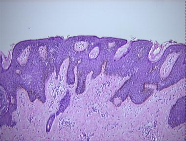 enterobius vermicularis kod dece