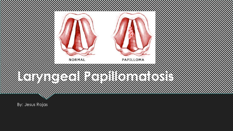 laryngeal papillomatosis and dysphagia intraductal papilloma tumor