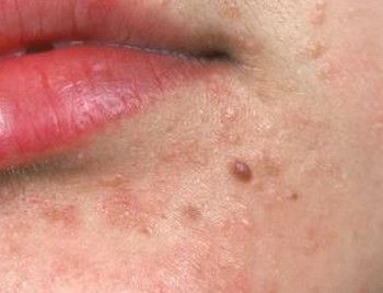 hpv on face contagious