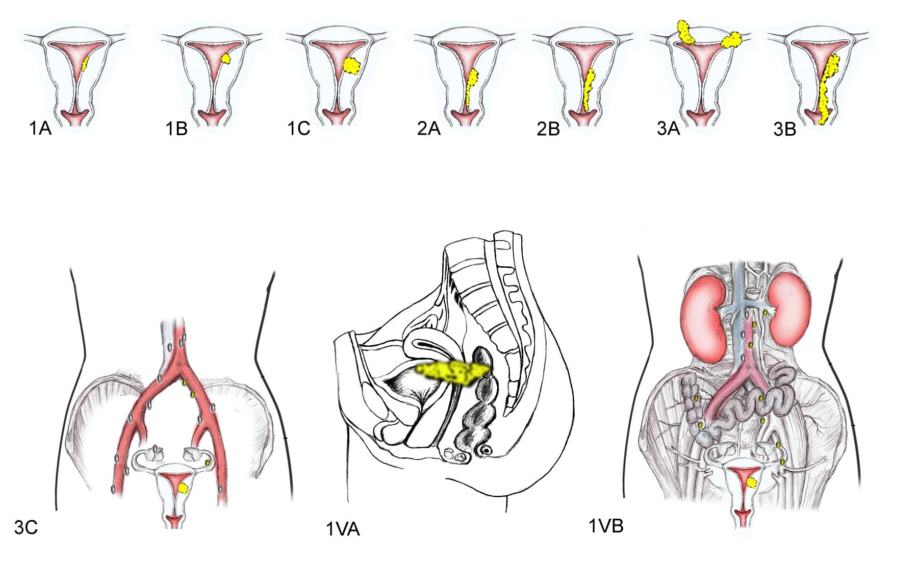 endometrial cancer figo staging 2019 cancer de piele mancarimi