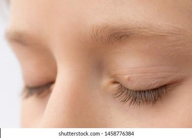 juvenile papilloma larynx vaccino papilloma virus da adulti