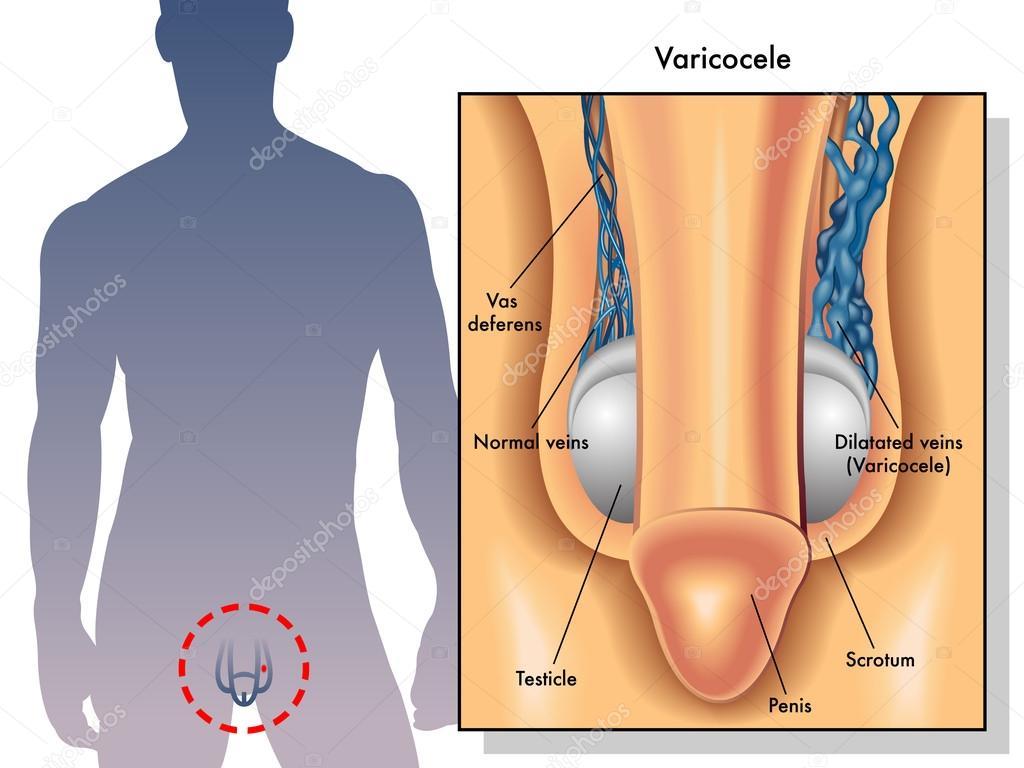 cancer testicular imagenes