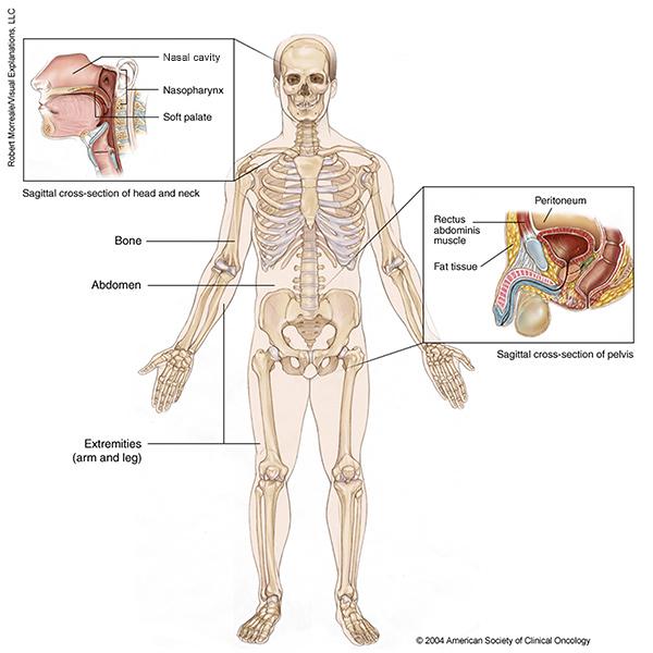 cancer of sarcoma