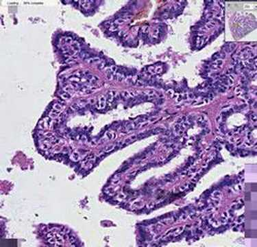 intraductal papilloma atypical ductal hyperplasia