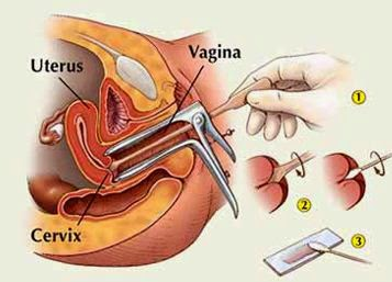 papilloma test sintomi how to get hpv throat cancer