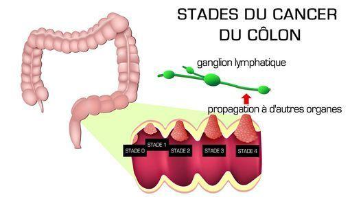 Cancer colorectal stade 4 survie, Cancer gros intestin traitement Cancer colorectal foie