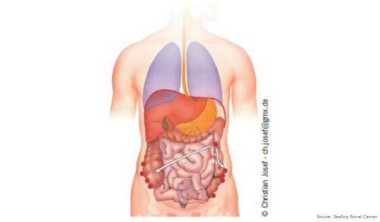 cancer de col uterin benign