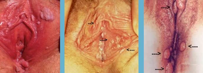 insan papilloma virusu nedir anthelmintic simple meaning